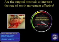 Are the Surgical Methods to Increase the Rate of Tooth Movement Effective? icon