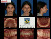 Temporary Anchors and Surgical Orthodontics