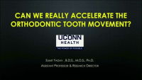 Can We Really Accelerate Orthodontic Tooth Movement