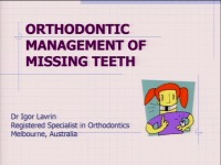 2015 AAO Annual Session - Orthodontic Management of Missing Teeth